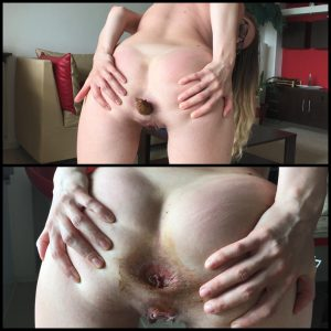 Release August 30, 2016 – Big turds and prolapsed rectum – Full HD-1080p, depfile, scat, Solo Scat, extreme