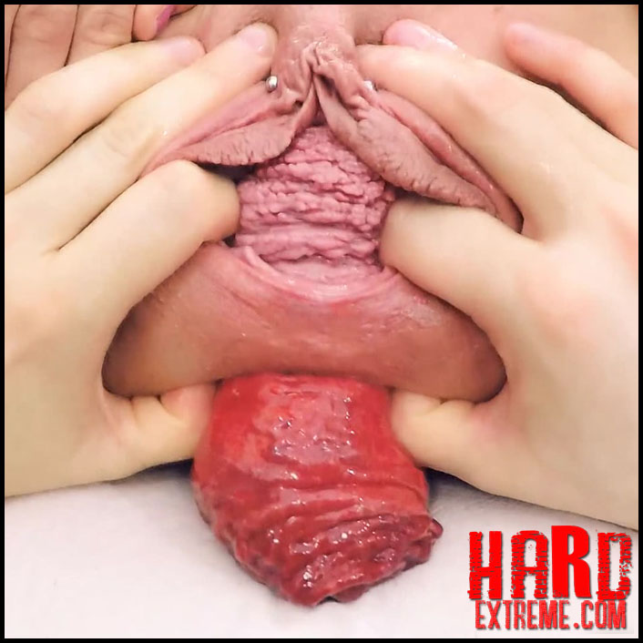 Argentina Naked Huge Anal Prolapse Huge Uterus Prolapse