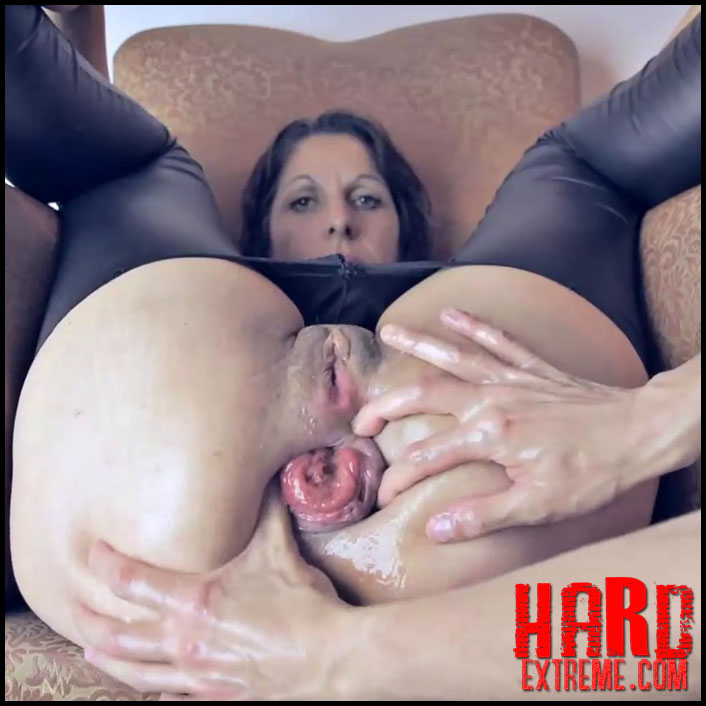 argendana amazing mature double fisting anal prolapse